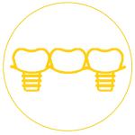 Gáspár Dental fogpótlások implantátum híd