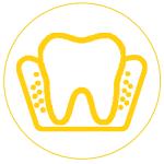 Gáspár Dental ínysorvadás kezelés kürettálás ínyplasztika sínezés
