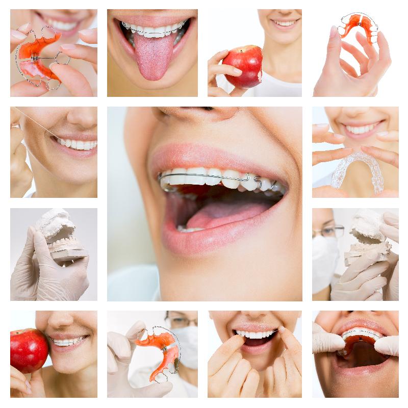 Gáspár Dental fogszabályozás kivehető fogszabályzó
