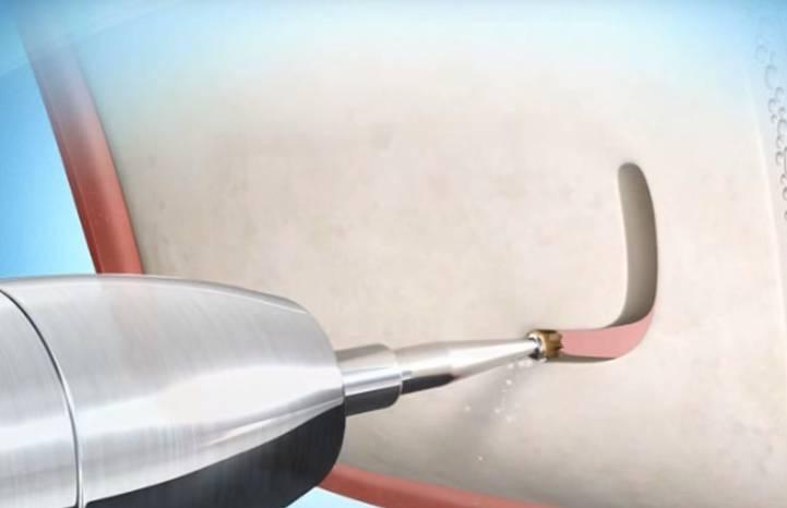 Gáspár Dental implantáció sinus lift arcüreg emelés