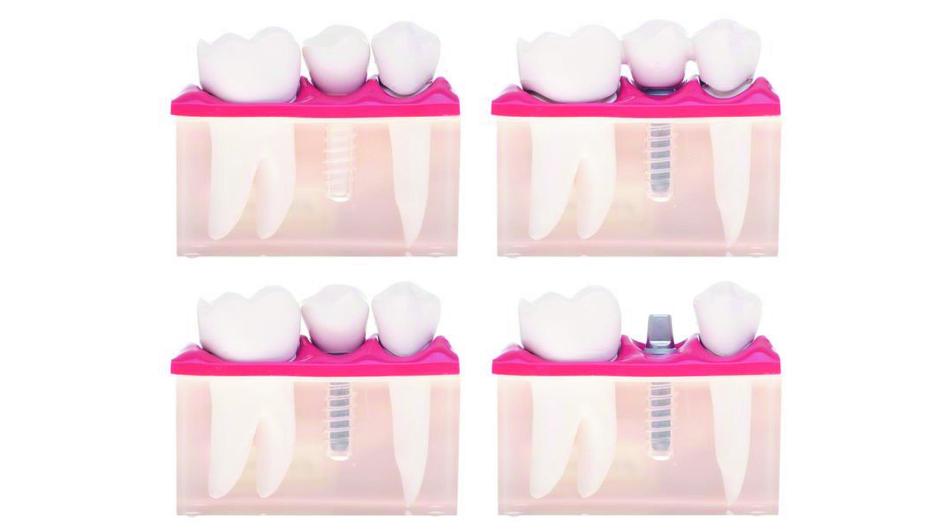 Gáspár Dental implantáció fogbeültetés