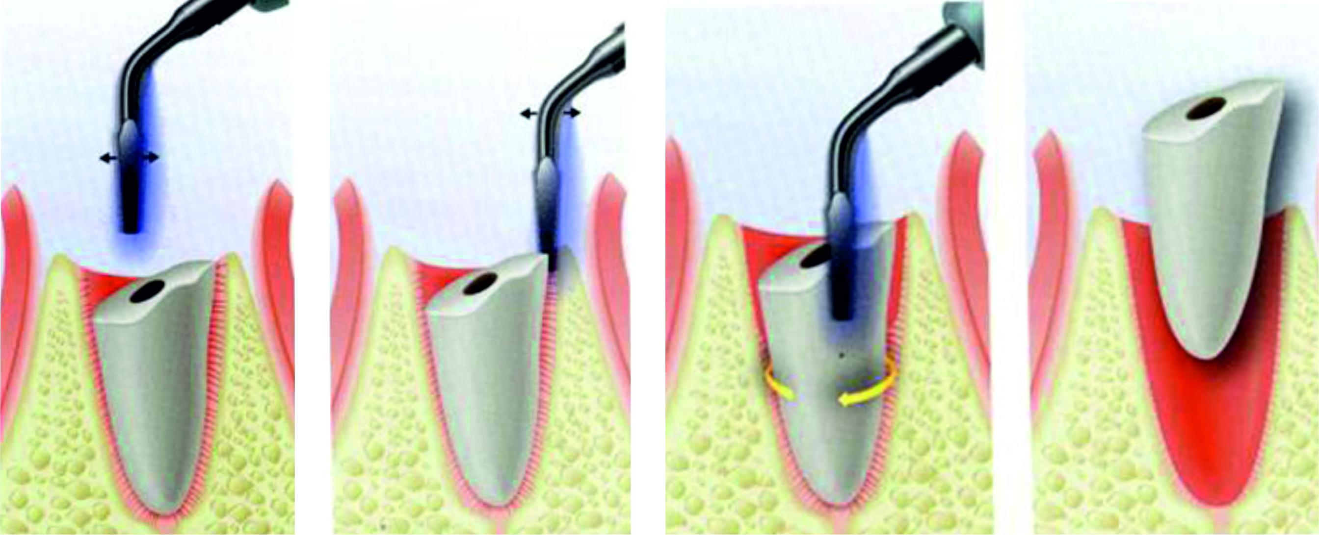 Gáspár Dental szájsebészet piezo sebészet csonkeltávolítás
