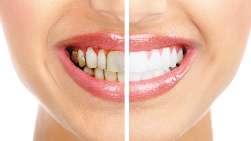 Gáspár Dental mosolykorrekciós kezelések esztétikai fogászat