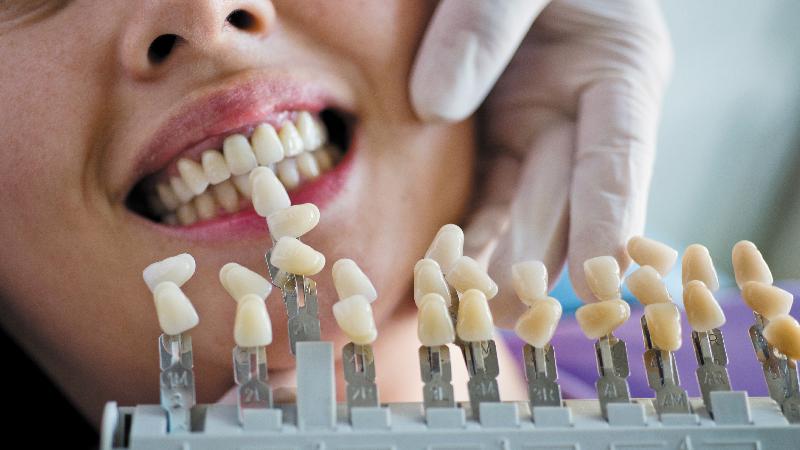 Gáspár Dental fogpótlás híd korona protézisek porcelán héjak