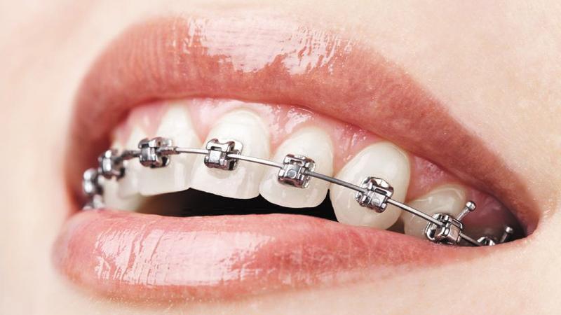 Gáspár Dental fogszabályzás konzultáció tervezés karbantartás