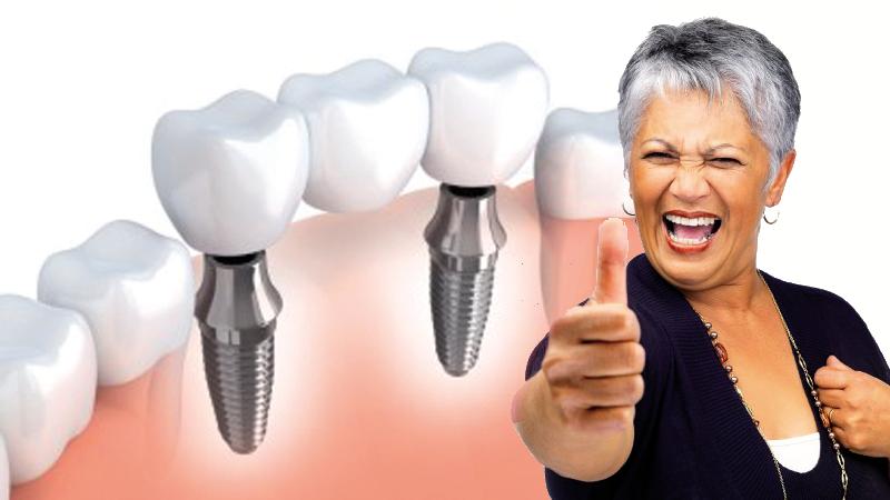 Gáspár Dental implantológia fogpótlás arcüreg emelés